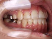 歯の矯正 術後3