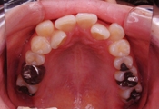 歯の矯正 術前